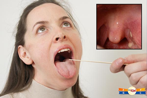 Khàn tiếngkèm theo khó nuốt kéo dài không rõ nguyên nhân là 1 trong những triệu chứng ung thư vòm họng không thể bỏ qua