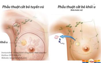 Các phương pháp điều trị ung thư vú phổ biến nhất
