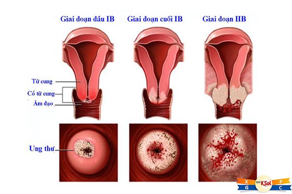 Ung thư cổ tử cung do các tế bào ở cổ tử cung (phần dưới của tử cung) bắt đầu phát triển vượt quá mức kiểm soát của cơ thể gây ra