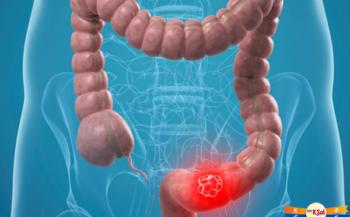 Tổng quan về bệnh ung thư ruột kết