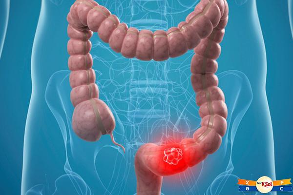 Dấu hiệu, triệu chứng của bệnh ung thư ruột non
