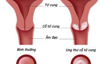 Triệu chứng, dấu hiệu ung thư cổ tử cung