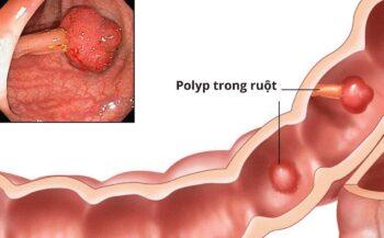 Triệu chứng, dấu hiệu ung thư đại tràng