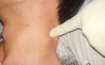 Phương pháp điều trị ung thư hạch cổ phổ biến nhất