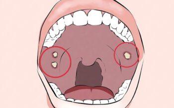 Bị ung thư miệng liệu có chữa được không?