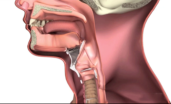 Ung thư thanh quản chiếm khoảng 2% các bệnh ung thư