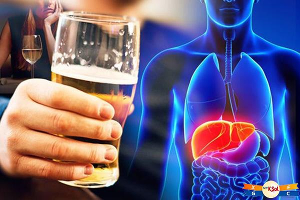 Bia rượu là 1 trong những nguyên nhân gây bệnh ung thư gan