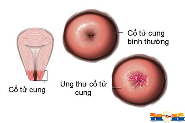 Ung thư cổ tử cung là gì?