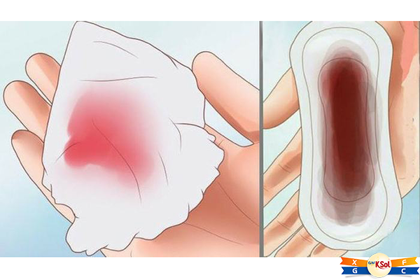 Tăng tiết dịch âm đạo có màu sắc bất thường là 1 trong những triệu chứng không thể bỏ qua của ung thư cổ tử cung