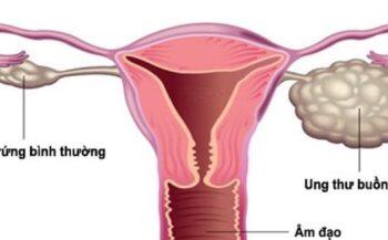 Chế độ dinh dưỡng cho người bị ung thư buồng trứng