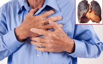 Ung thư phổi sống được bao lâu? Còn có thể chữa?