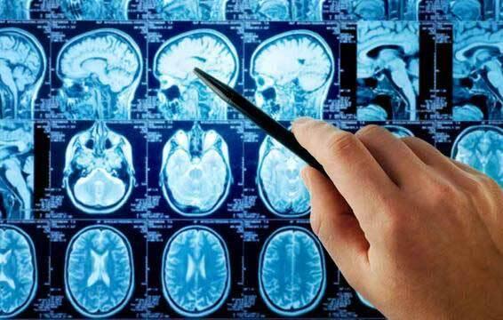 Những thay đổi thất thường là dấu hiệu ung thư não