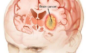 Đau đầu có phải triệu chứng bệnh ung thư não không?