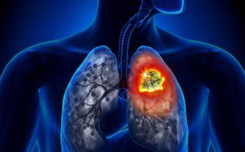 Ung thư phổi có tỷ lệ tử vong rất cao hiện nay
