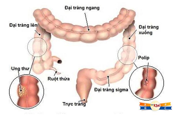 Ung thư đại – trực tràng là ung thư phát khởi nguyên thủy từ ruột già, là phần cuối cùng của ống tiêu hóa