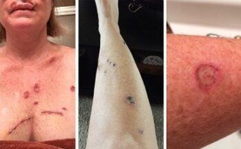Phương pháp kết hợp mới trong việc điều trị ung thư da