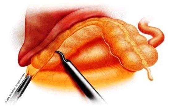 Phẫu thuật cắt đại tràng