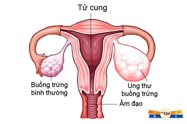 Nguyên nhân và triệu chứng ung thư buồng trứng