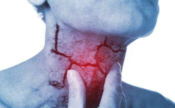 Phương pháp điều trị ung thư thanh quản