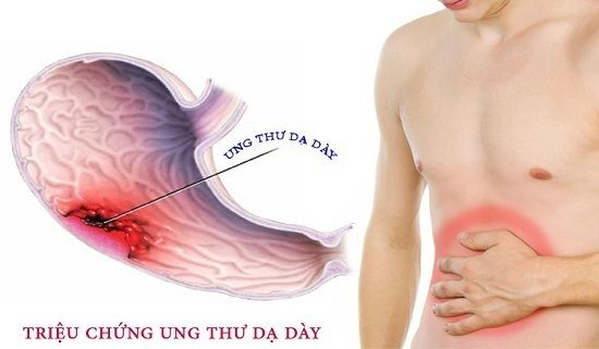 Đau bụng là triệu chứng ung thư dạ dày
