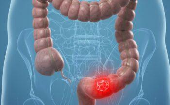 4 sự thật về ung thư đại tràng