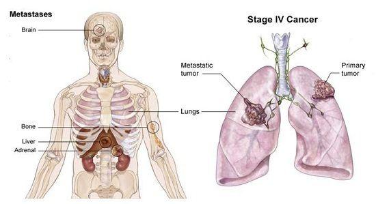 Người mắc ung thư đã lan tới các hạch bạch huyết lân cận sẽ sống được trên 5 năm khoảng 25%