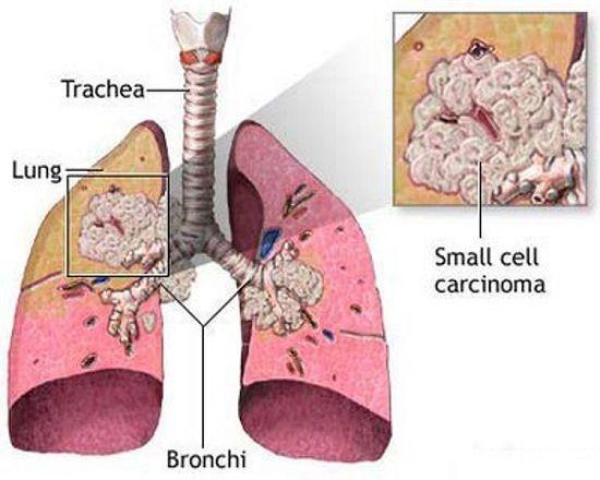 Người có tiền sử mắc bệnh về phổi dễ bị ung thư phổi