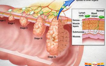 Ung thư đại tràng di căn có chữa được không?