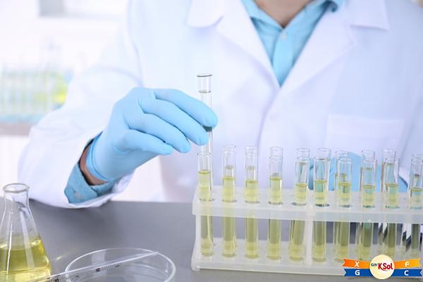 Xét nghiệm nước tiểu để chuẩn đoán bệnh ung thư bàng quang