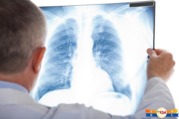Quan niệm ung thư phổi có lây là hoàn toàn sai lầm
