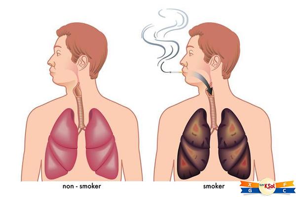 Hút thuốc lá là nguyên nhân hàng đầu gây ra ung thư phổi