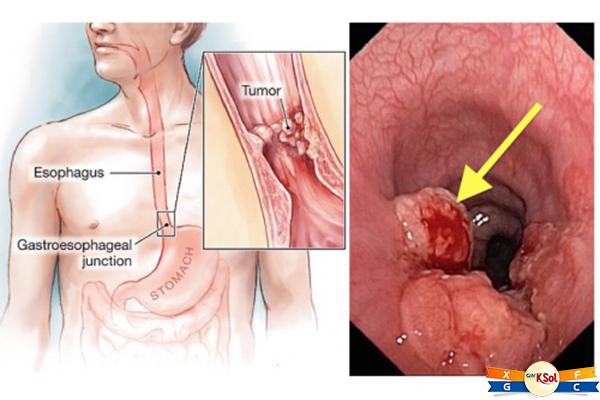 Phương pháp điều trị bệnh ung thư thực quản giai đoạn cuối