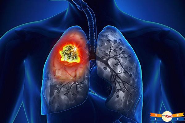 Ung thư phổi có lây không và lây qua con đường nào?