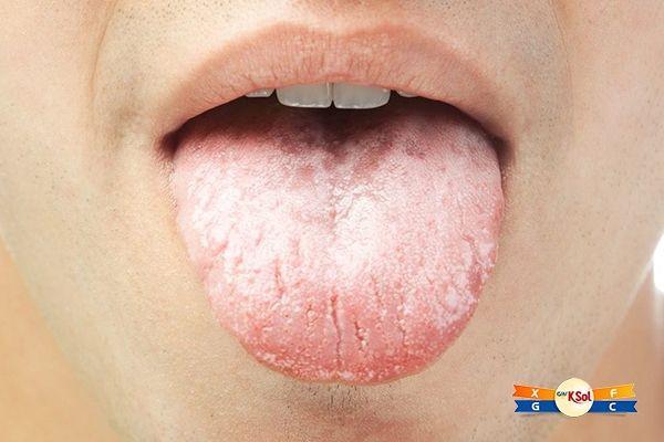 Ung thư miệng có thể xảy ra trên: môi, nướu răng, lưỡi, lớp lót bên trong của má, vòm miệng, sàn miệng (dưới lưỡi).