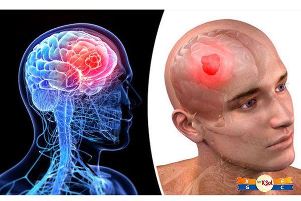 Ung thư não thường được sử dụng phương pháp cận xạ trị