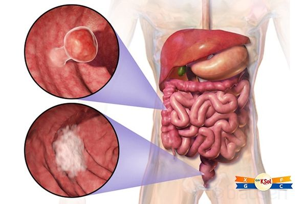 Nếu kiểm tra hậu môn thấy cục nhỏ nổi lên thì là trĩ, còn nếu thấy những cục cứng như hoa cải, thì có thể bạn đã mắc ung thư