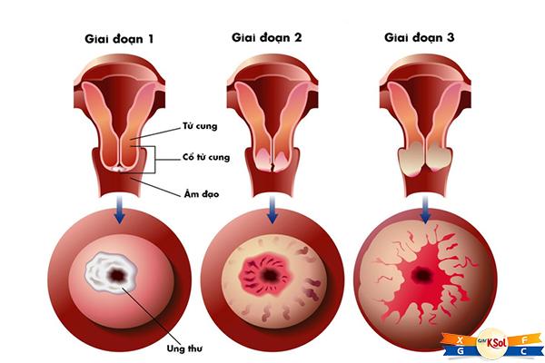 Cách điều trị ung thư cổ tử cung giai đoạn 3 hiện nay