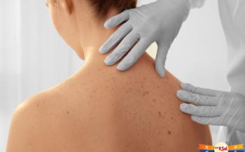 Bệnh ung thư da có cơ hội chữa khỏi không?