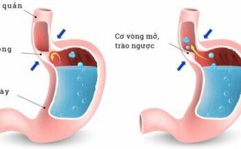 Tổng quan về bệnh trào ngược dạ dày