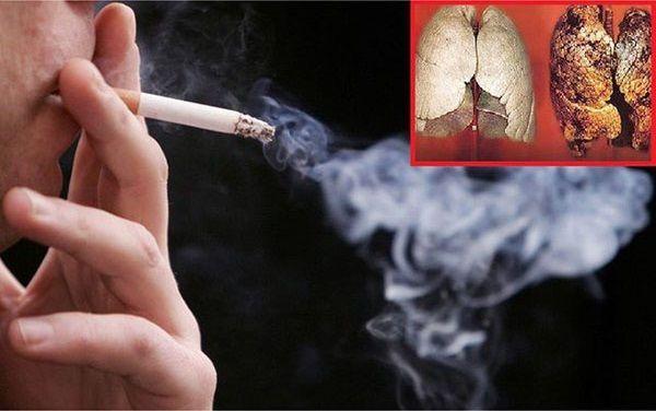 Hút thuốc lá thường xuyên thủ phạm chính gây ra ung thư phổi (1)