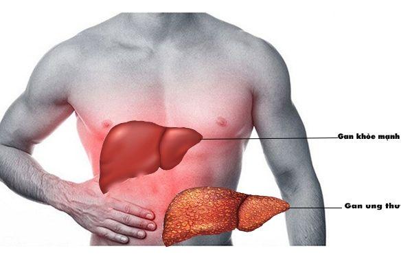Phần lớn ung thư giai đoạn đầu thường phát triển âm thầm