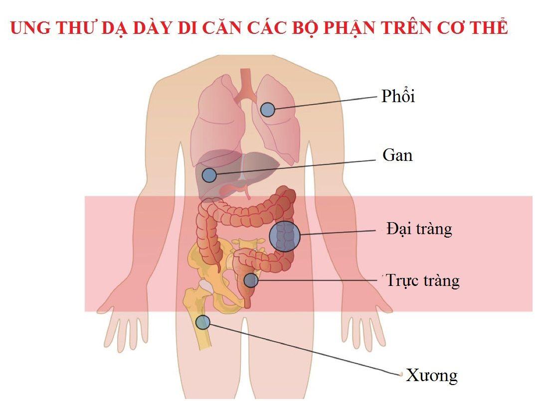 Ung thư dạ dày di căn