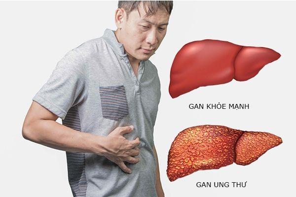 Ung thư gan gây ra nhưng cơn đau dữ dội