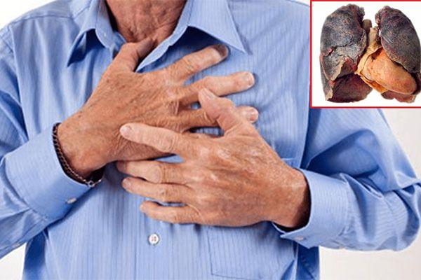 Ung thư phổi gây ra những cơn đau tức ngực