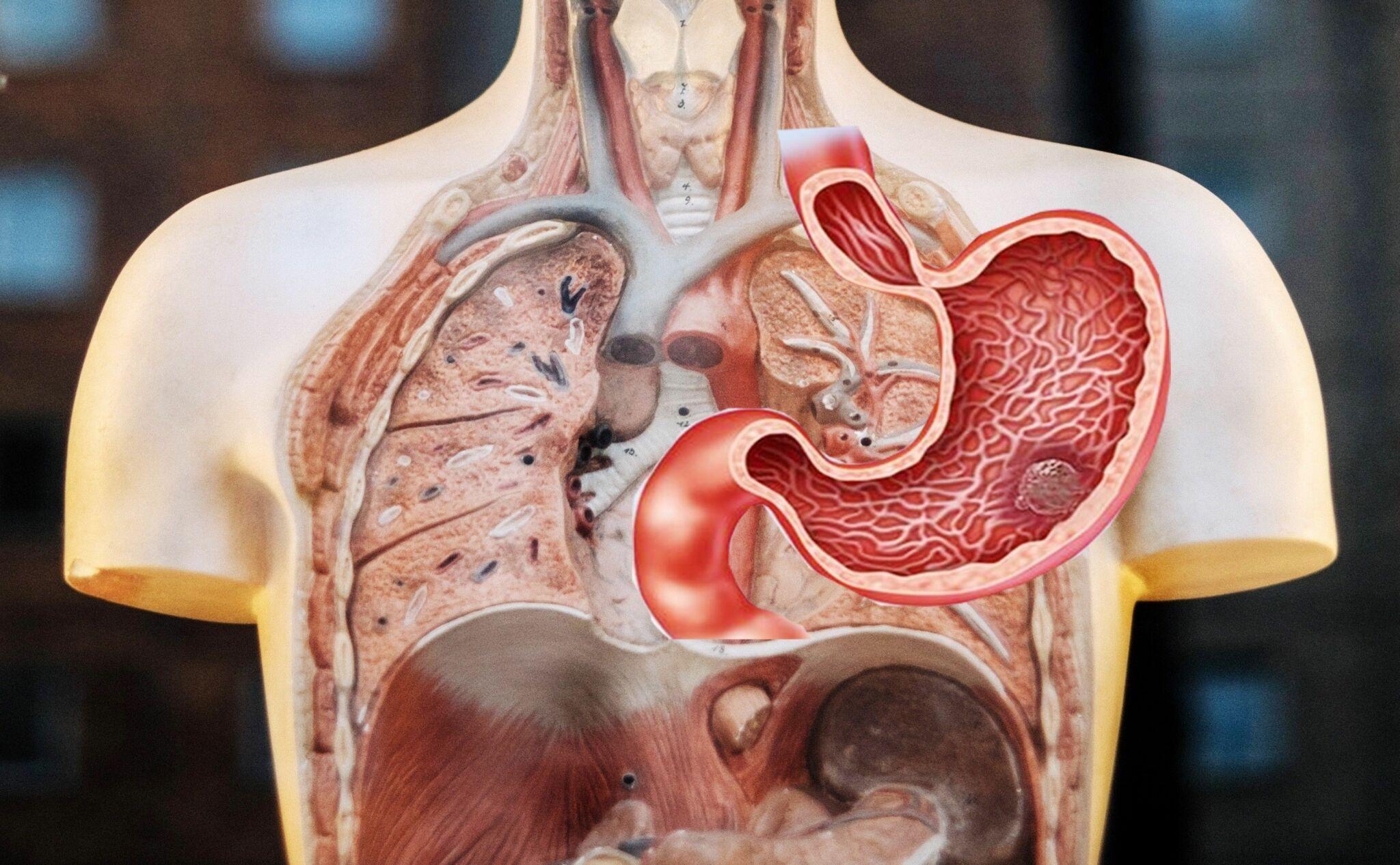 Phổi bị tổn thương khi khối u ung thư da dày di căn