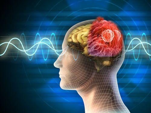Ung thư dạ dày di căn sang não