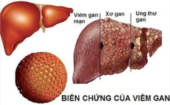 Dấu hiệu cảnh báo ung thư gan không thể bỏ qua