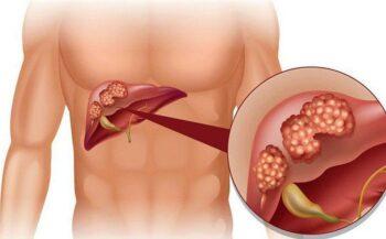 Men gan cao dấu hiệu cảnh báo của bệnh xơ gan, ung thư gan