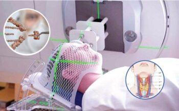 Tìm hiểu về cách điều trị bệnh ung thư vòm họng