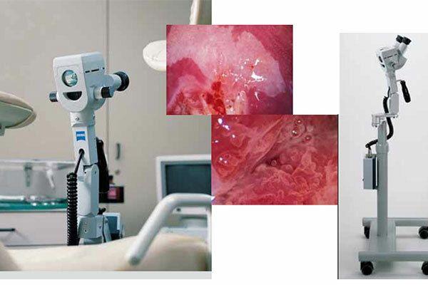 Chẩn đoán ung thư nội mạc tử cung bằng phương pháp nội soi